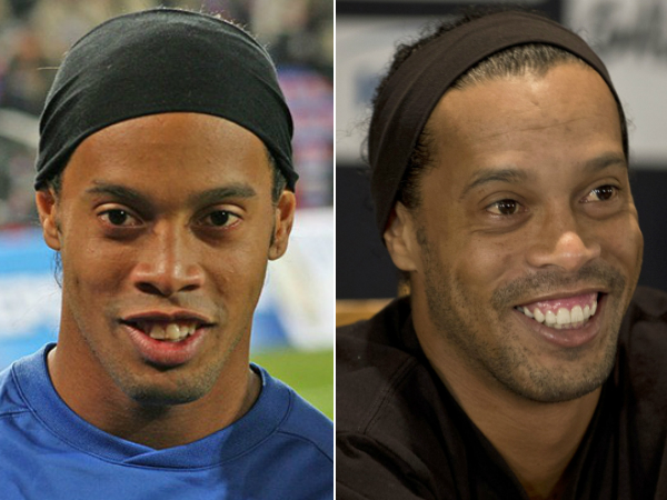 O antes e depois de Ronaldinho Gaúcho, que gastou quase R$150 mil para construção do novo sorriso - Crédito: Divulgação